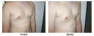 Chirurgie des seins chez l'homme